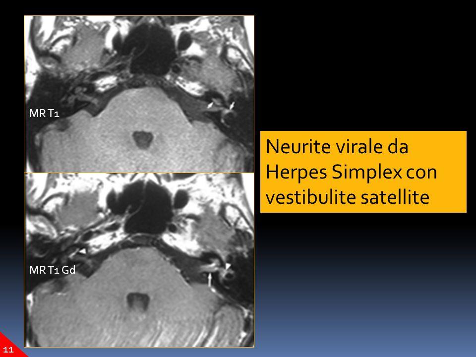 Neurite virale da Herpes Simplex con vestibulite satellite