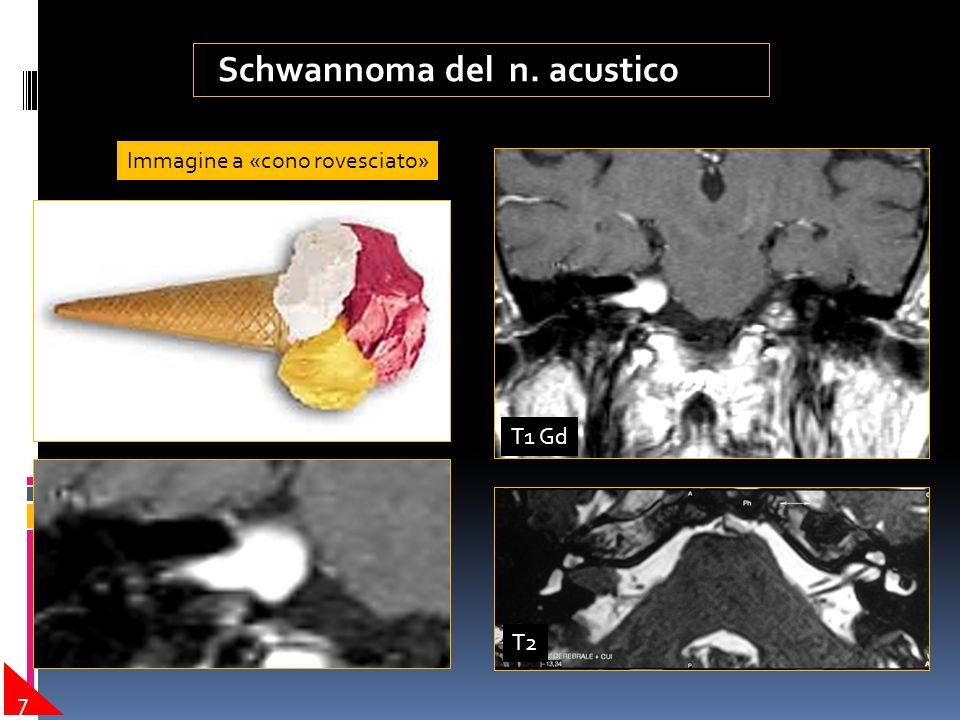 Lesioni espansive dell' osso temporale