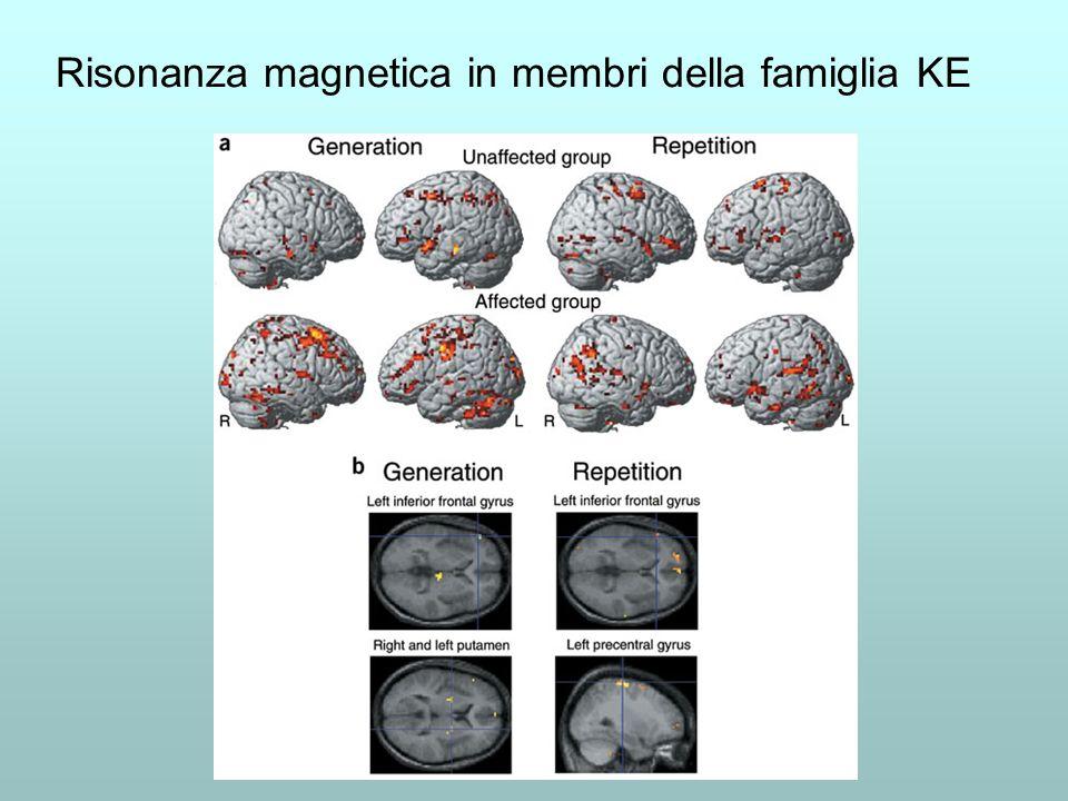 Risonanza magnetica in membri della famiglia KE