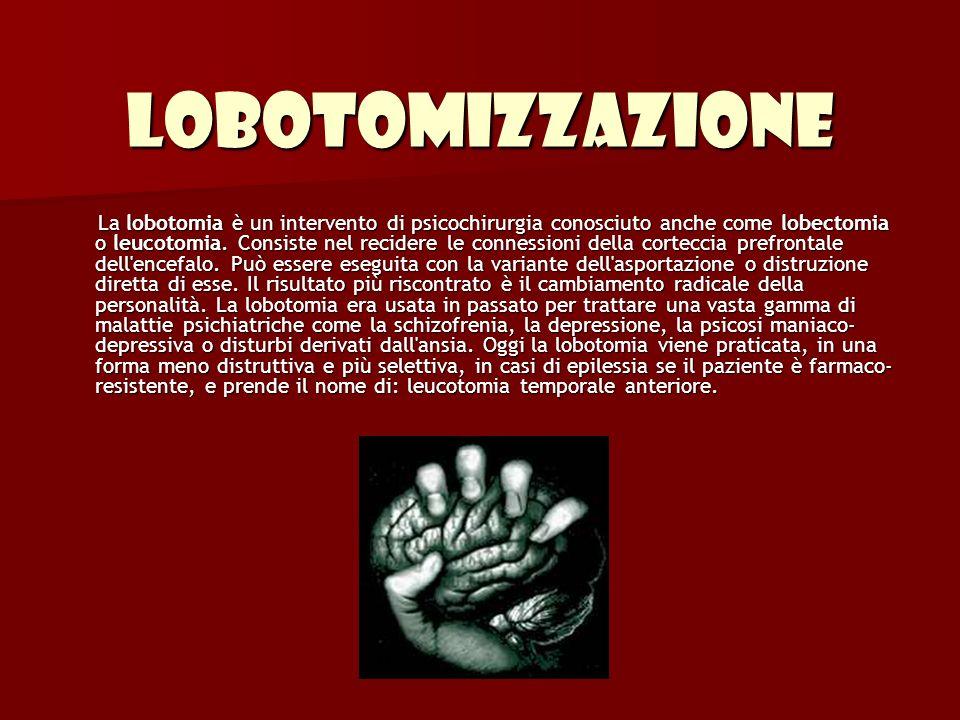 Lobotomizzazione