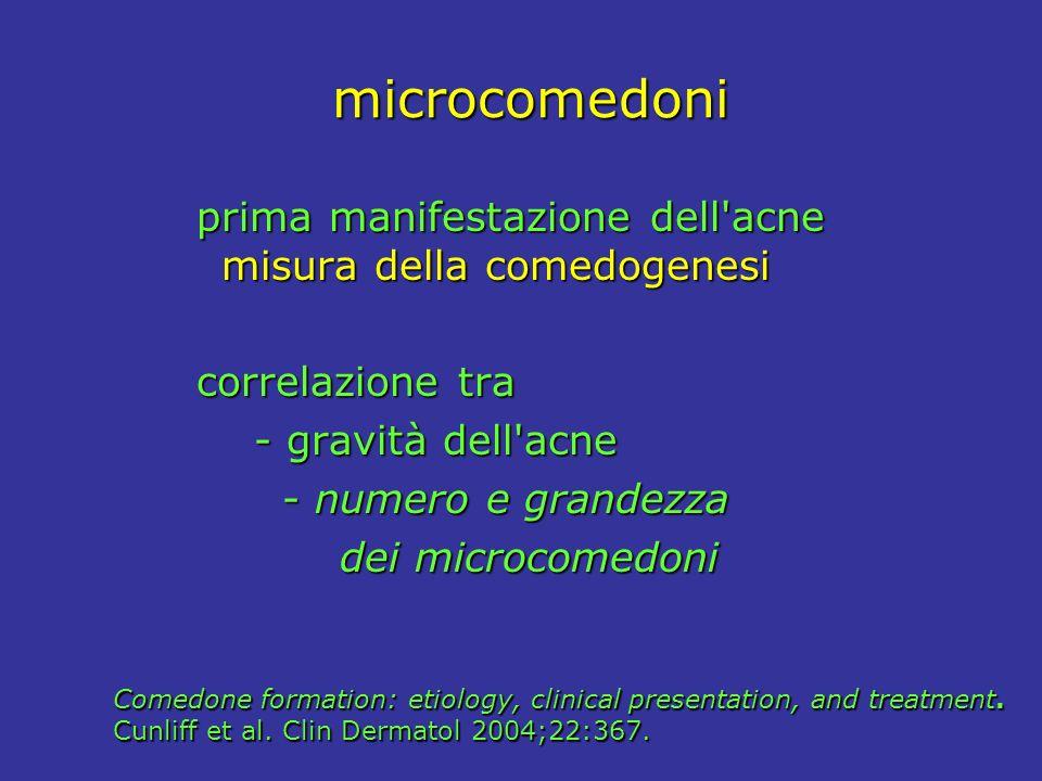 microcomedoni prima manifestazione dell acne misura della comedogenesi