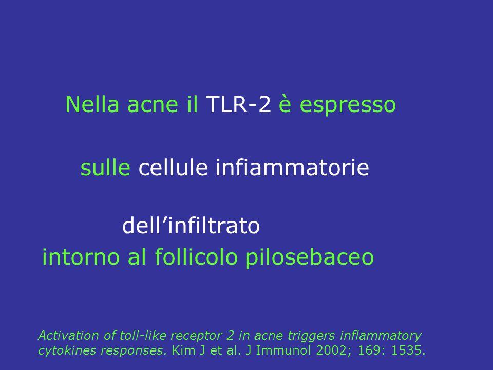 Nella acne il TLR-2 è espresso sulle cellule infiammatorie