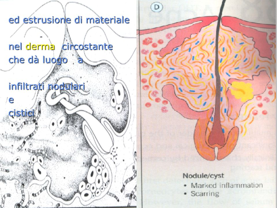 ed estrusione di materiale