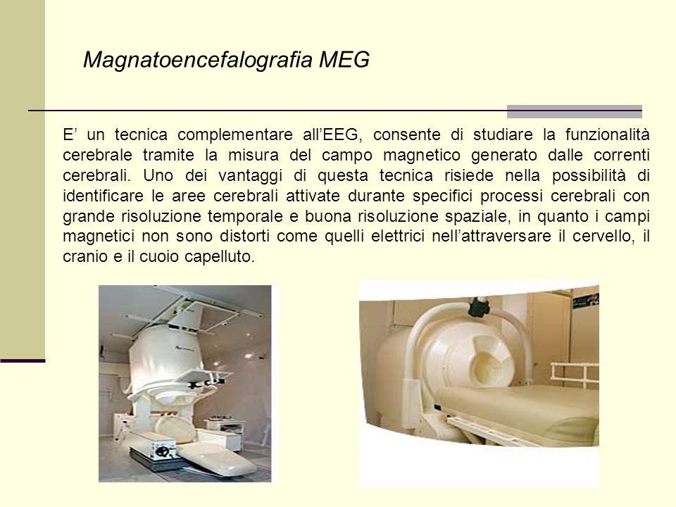 Magnatoencefalografia MEG