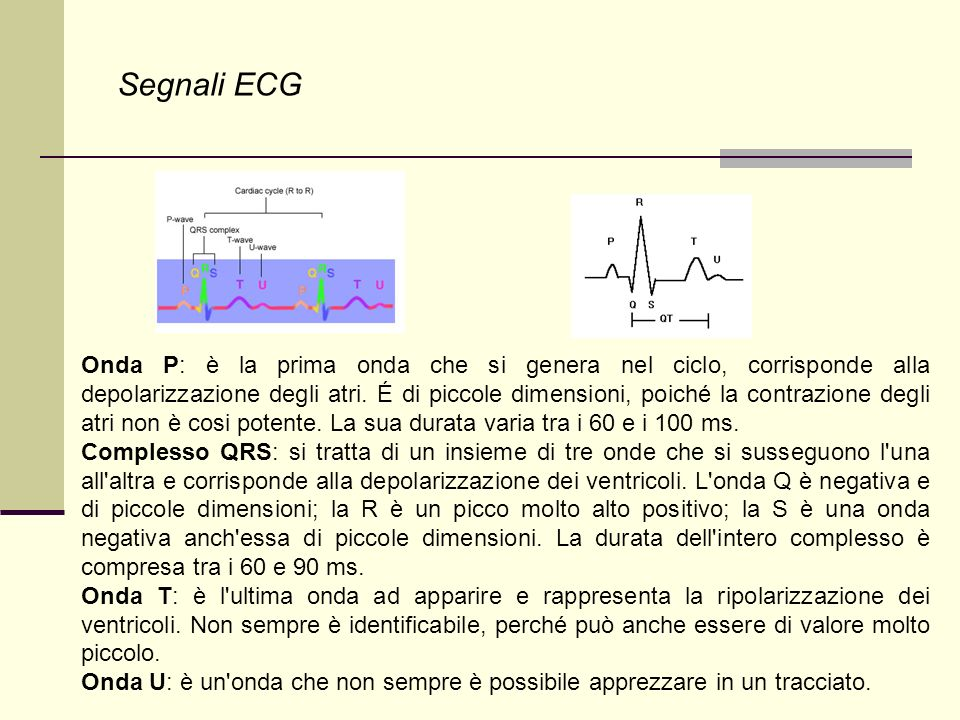 Segnali ECG