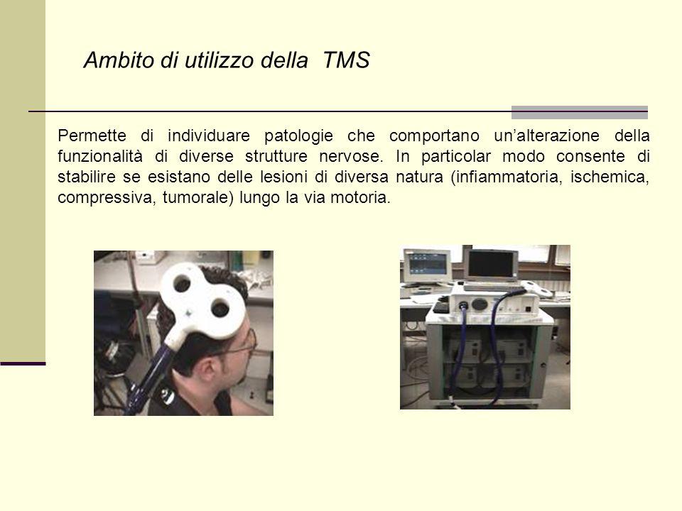 Ambito di utilizzo della TMS