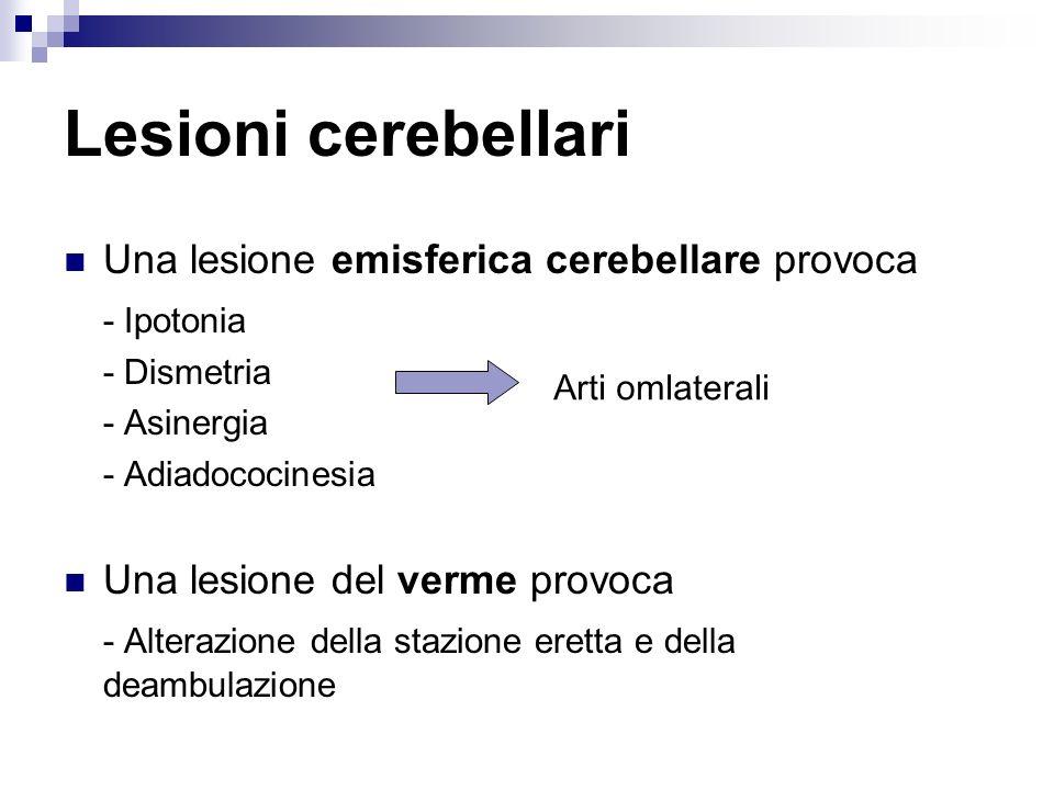 Lesioni cerebellari Una lesione emisferica cerebellare provoca