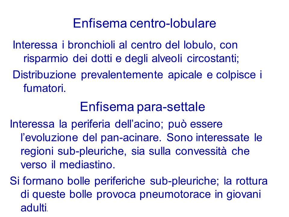 Enfisema centro-lobulare