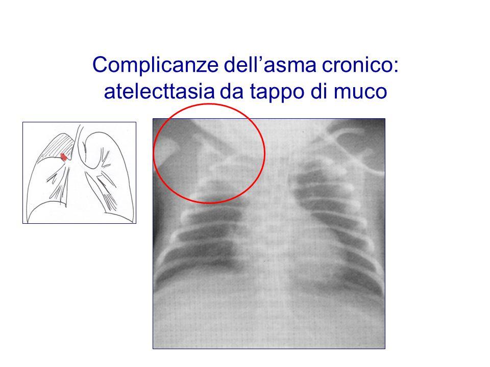 Complicanze dell'asma cronico: atelecttasia da tappo di muco