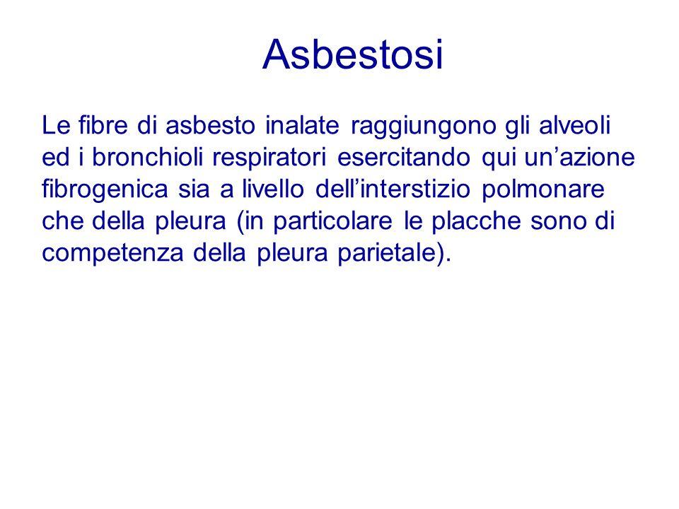 Asbestosi
