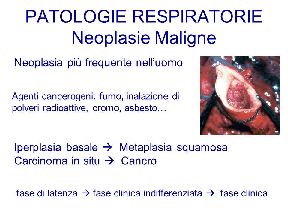 PATOLOGIE RESPIRATORIE Neoplasie Maligne