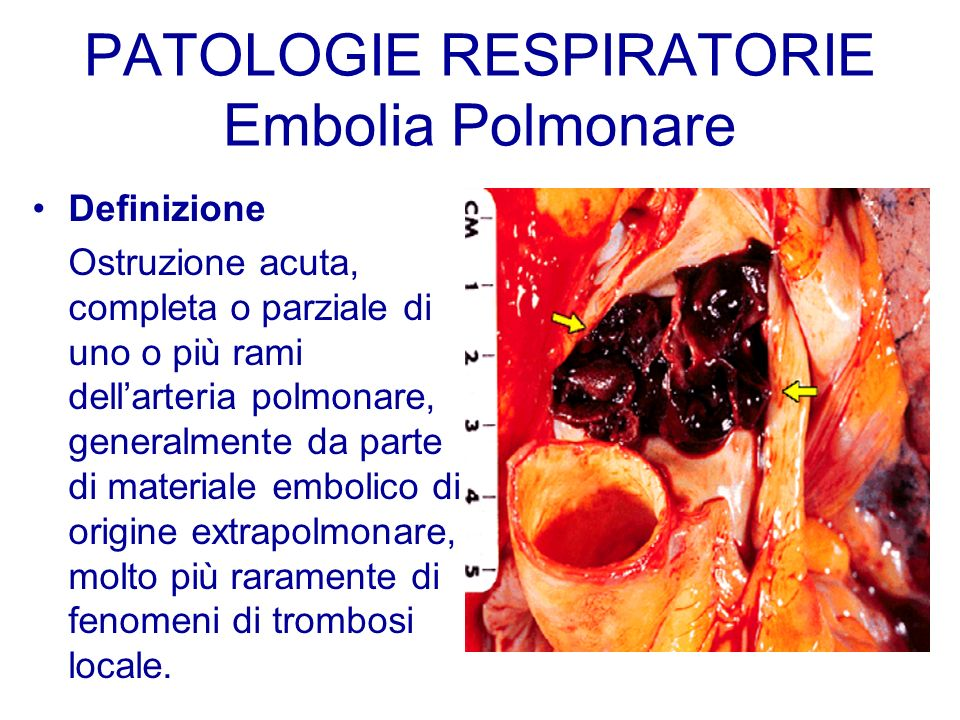 PATOLOGIE RESPIRATORIE Embolia Polmonare