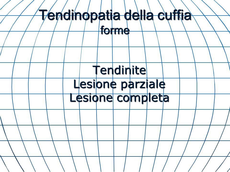 Tendinopatia della cuffia forme