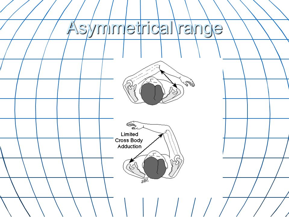 Asymmetrical range The range of cross body adduction is less than the opposite side.