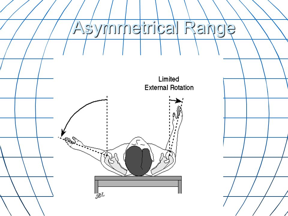 Asymmetrical Range The range of external rotation is less than the opposite side.