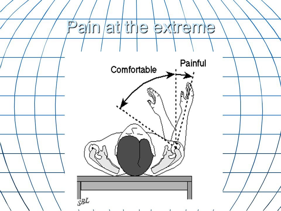 Pain at the extreme Motion may be comfortable in the allowed range, but painful at the extremes.