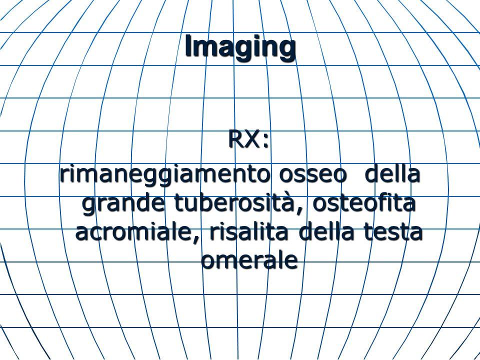 Imaging RX: rimaneggiamento osseo della grande tuberosità, osteofita acromiale, risalita della testa omerale.