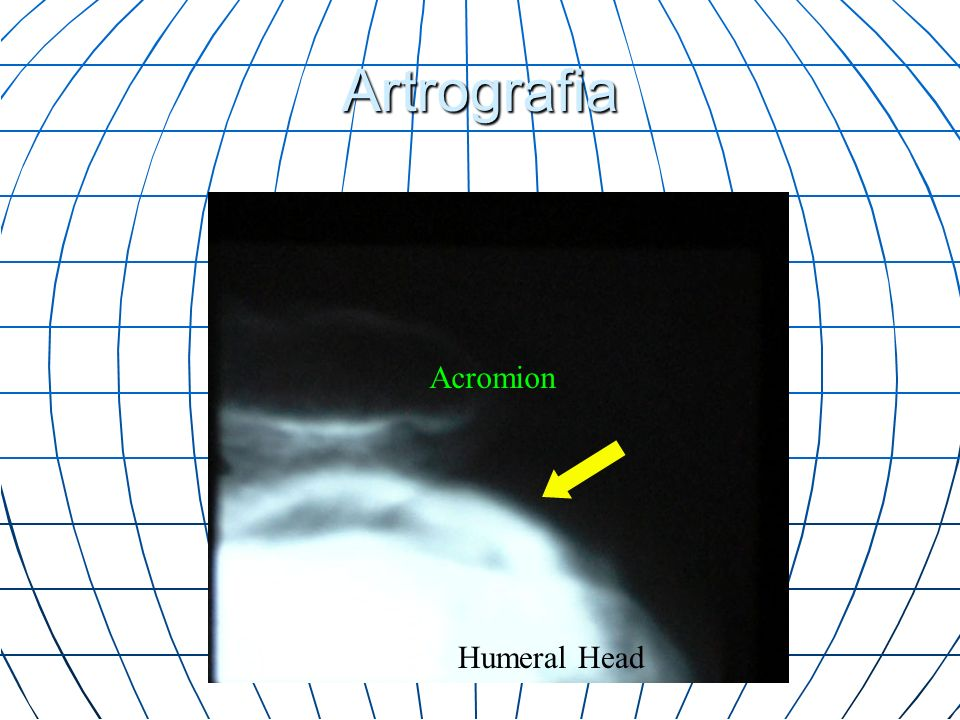 Artrografia Acromion Humeral Head