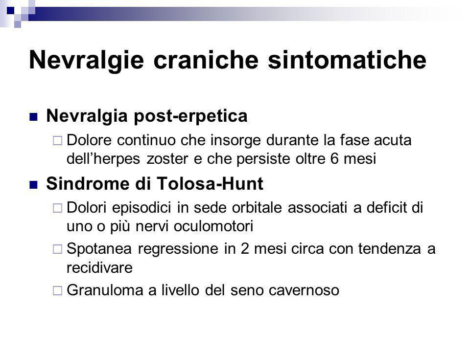 Nevralgie craniche sintomatiche