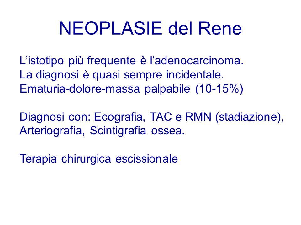NEOPLASIE del Rene L'istotipo più frequente è l'adenocarcinoma.