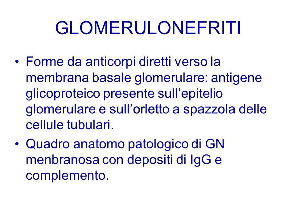 GLOMERULONEFRITI