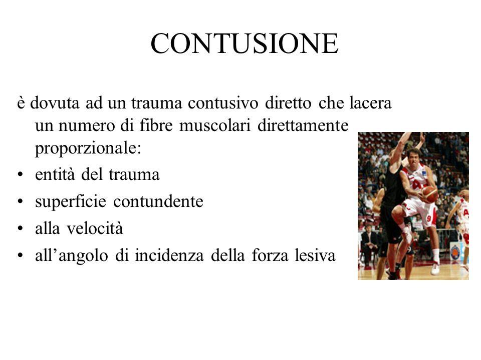 CONTUSIONE è dovuta ad un trauma contusivo diretto che lacera un numero di fibre muscolari direttamente proporzionale: