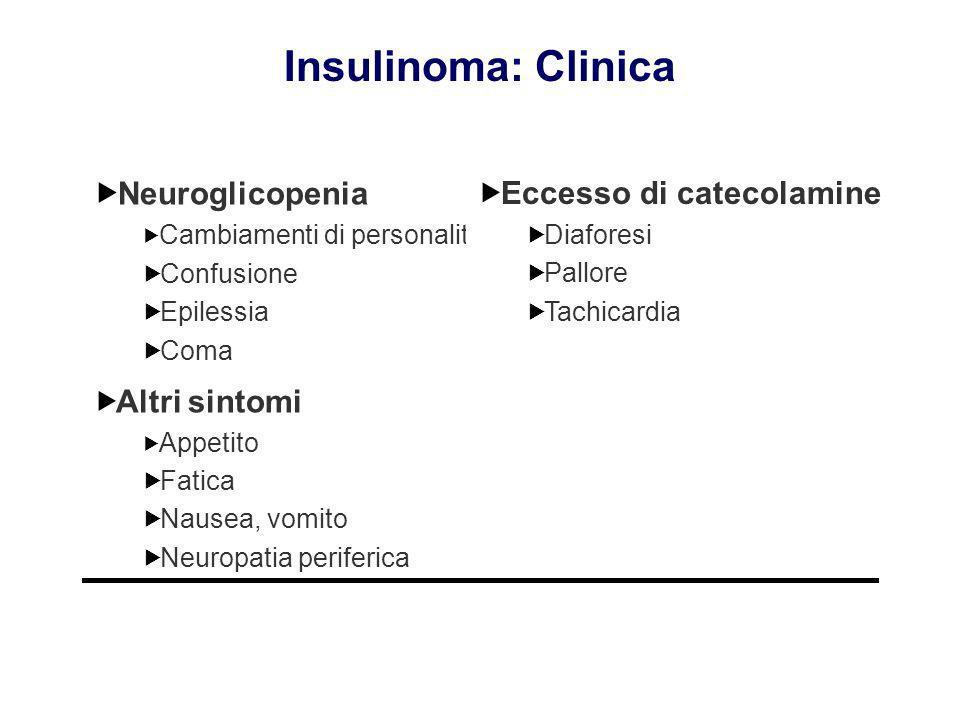 Insulinoma: Clinica Neuroglicopenia Eccesso di catecolamine