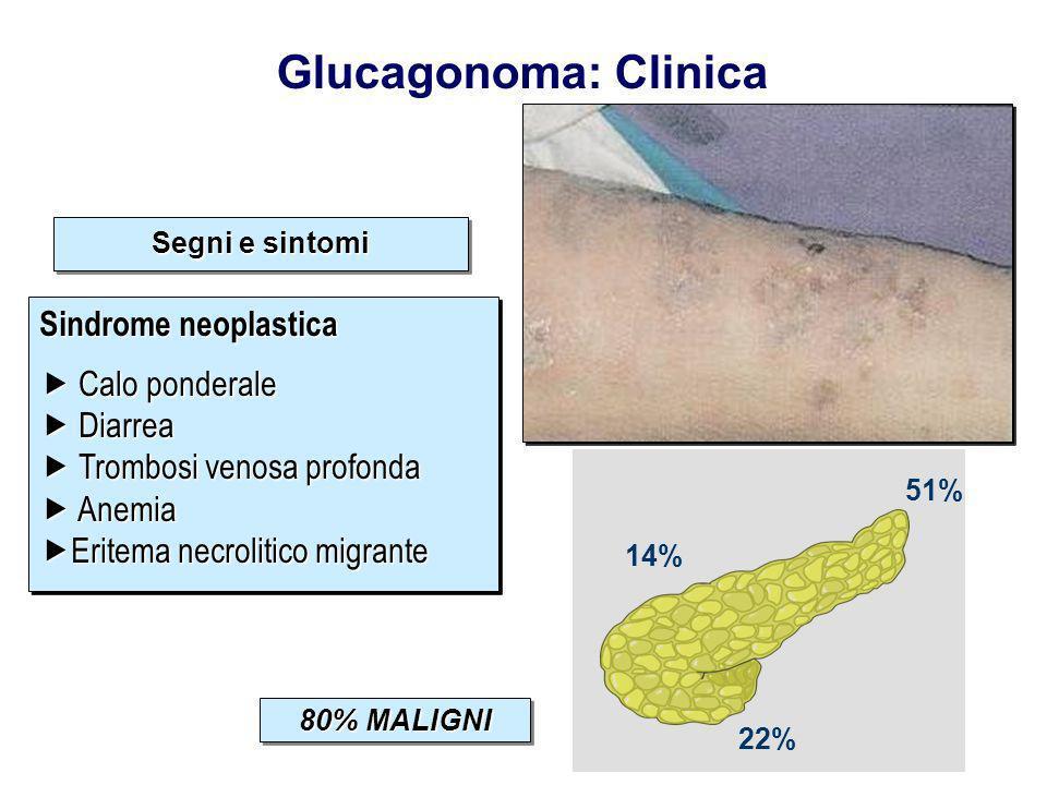 Distribuzione del tumore
