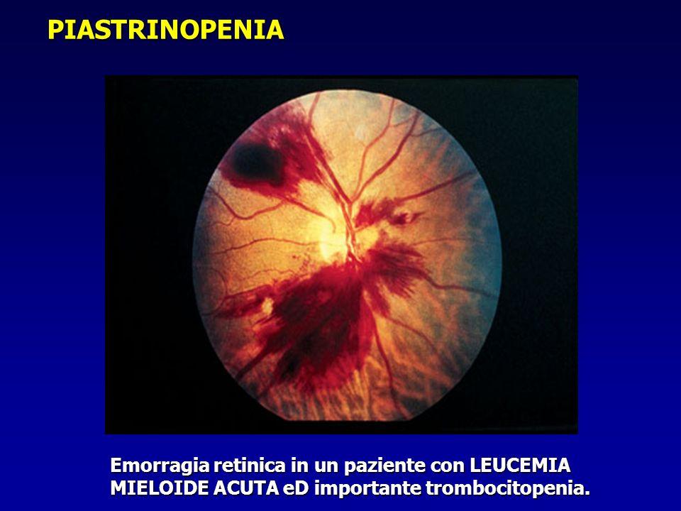 PIASTRINOPENIA Emorragia retinica in un paziente con LEUCEMIA MIELOIDE ACUTA eD importante trombocitopenia.