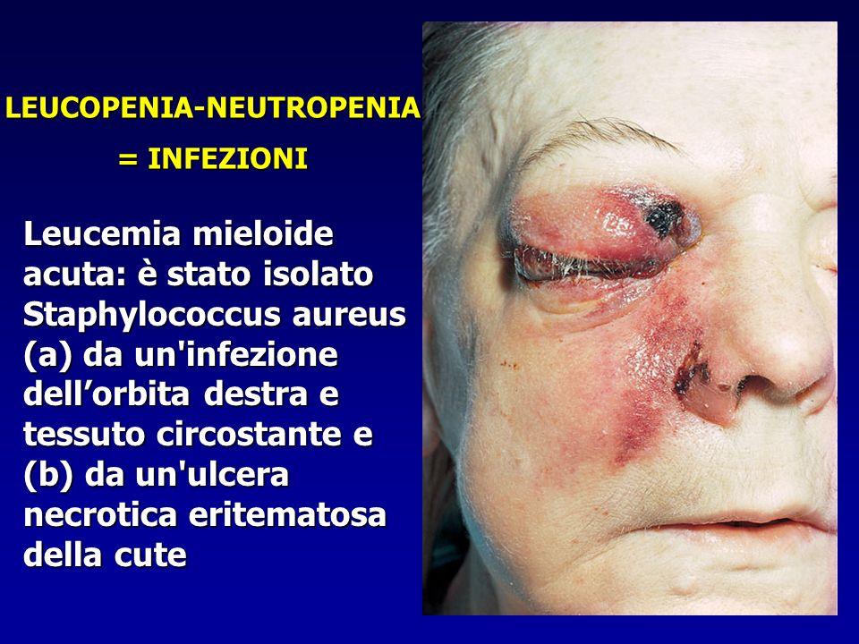 LEUCOPENIA-NEUTROPENIA