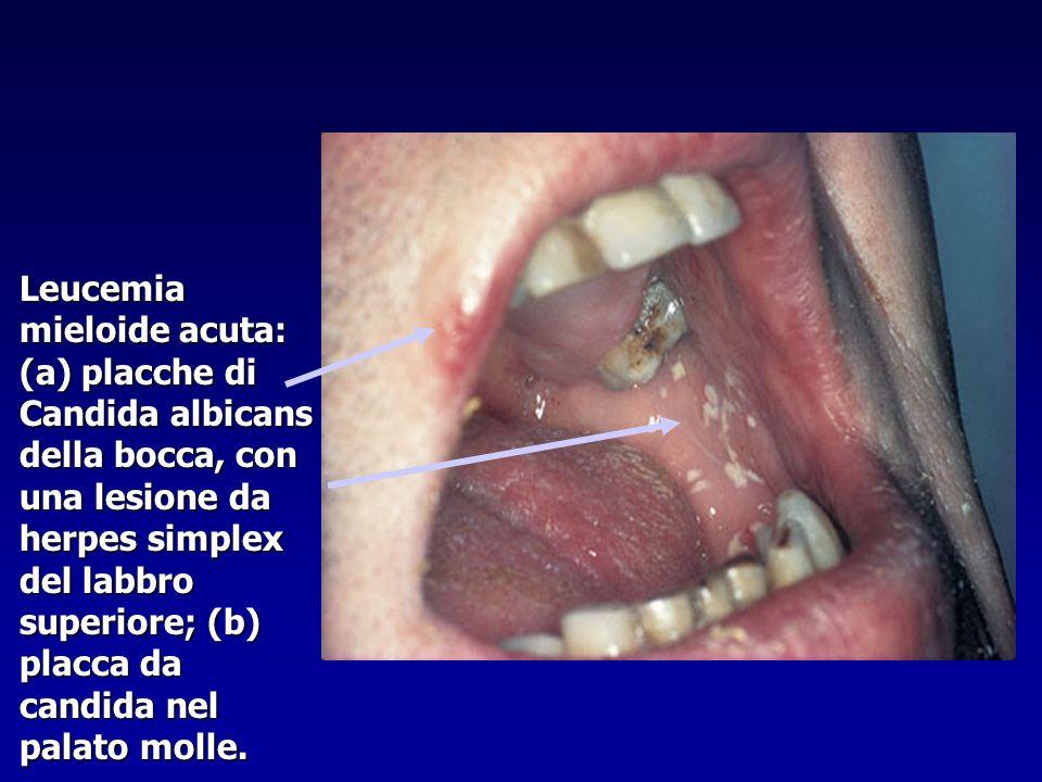 Leucemia mieloide acuta: (a) placche di Candida albicans della bocca, con una lesione da herpes simplex del labbro superiore; (b) placca da candida nel palato molle.