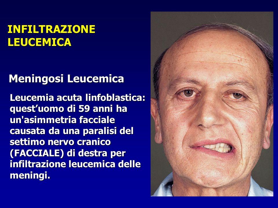 INFILTRAZIONE LEUCEMICA
