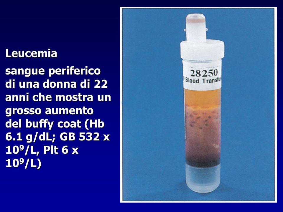 Leucemia sangue periferico di una donna di 22 anni che mostra un grosso aumento del buffy coat (Hb 6.1 g/dL; GB 532 x 109/L, Plt 6 x 109/L)