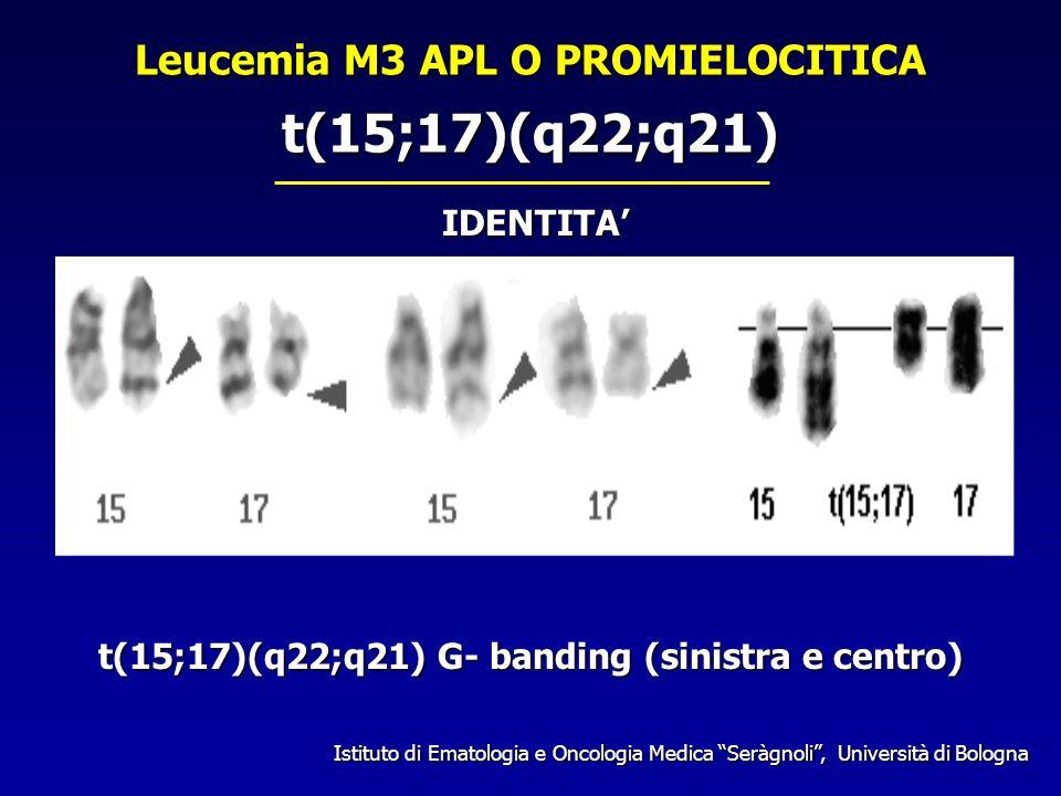 t(15;17)(q22;q21) Leucemia M3 APL O PROMIELOCITICA IDENTITA'