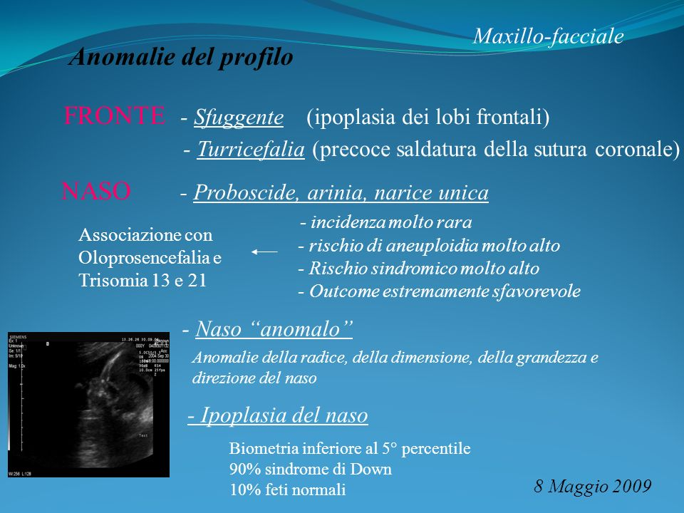 FRONTE - Sfuggente (ipoplasia dei lobi frontali)