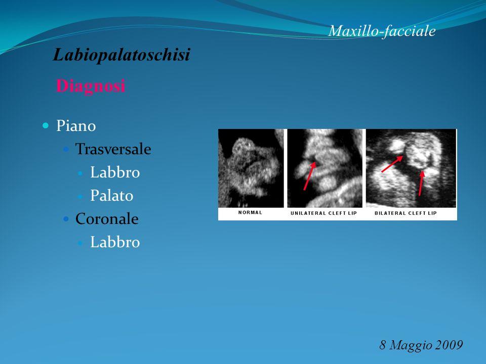 Labiopalatoschisi Diagnosi Maxillo-facciale Piano Trasversale Labbro