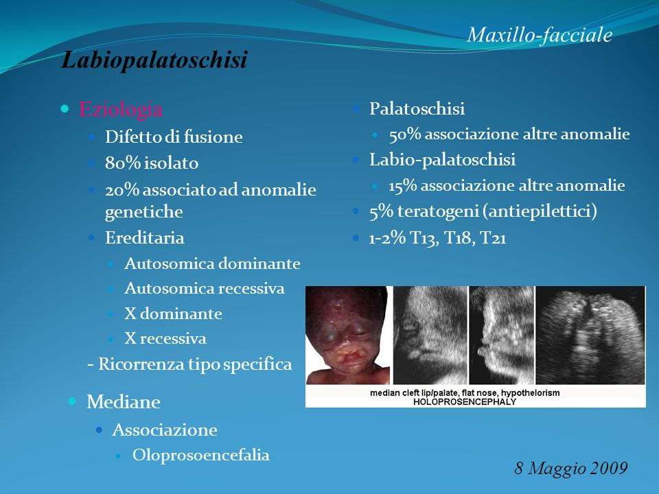 Labiopalatoschisi Maxillo-facciale Eziologia Mediane Palatoschisi