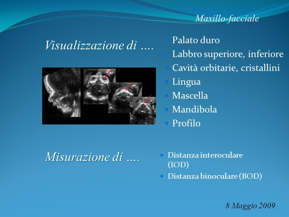 Visualizzazione di …. Misurazione di …. Maxillo-facciale Palato duro