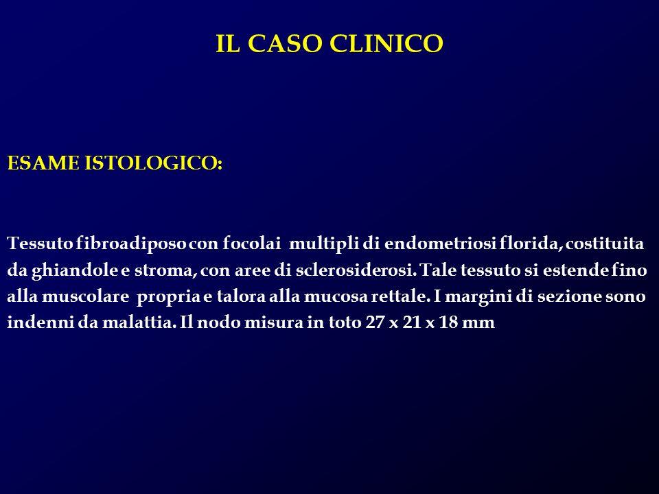 IL CASO CLINICO ESAME ISTOLOGICO: