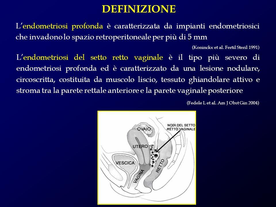 DEFINIZIONE L'endometriosi profonda è caratterizzata da impianti endometriosici che invadono lo spazio retroperitoneale per più di 5 mm.