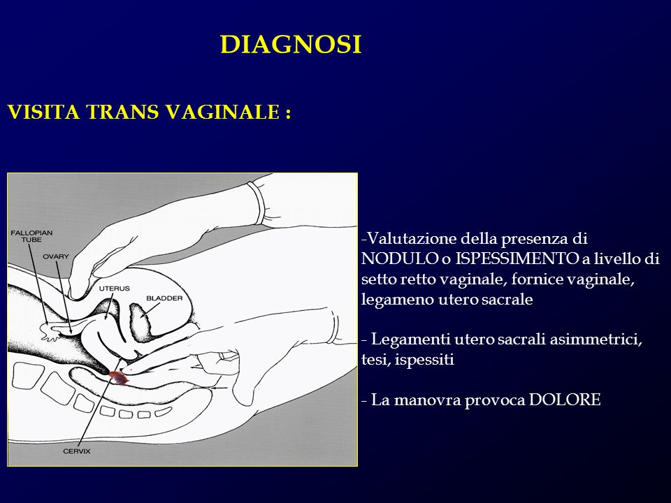 DIAGNOSI VISITA TRANS VAGINALE :