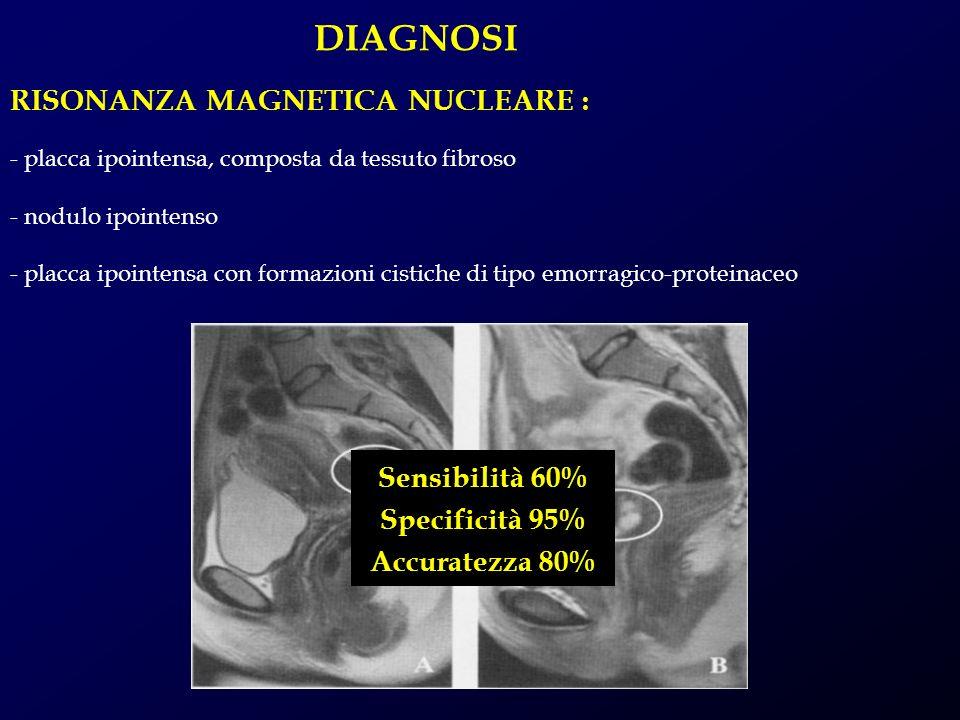 DIAGNOSI RISONANZA MAGNETICA NUCLEARE : Sensibilità 60%