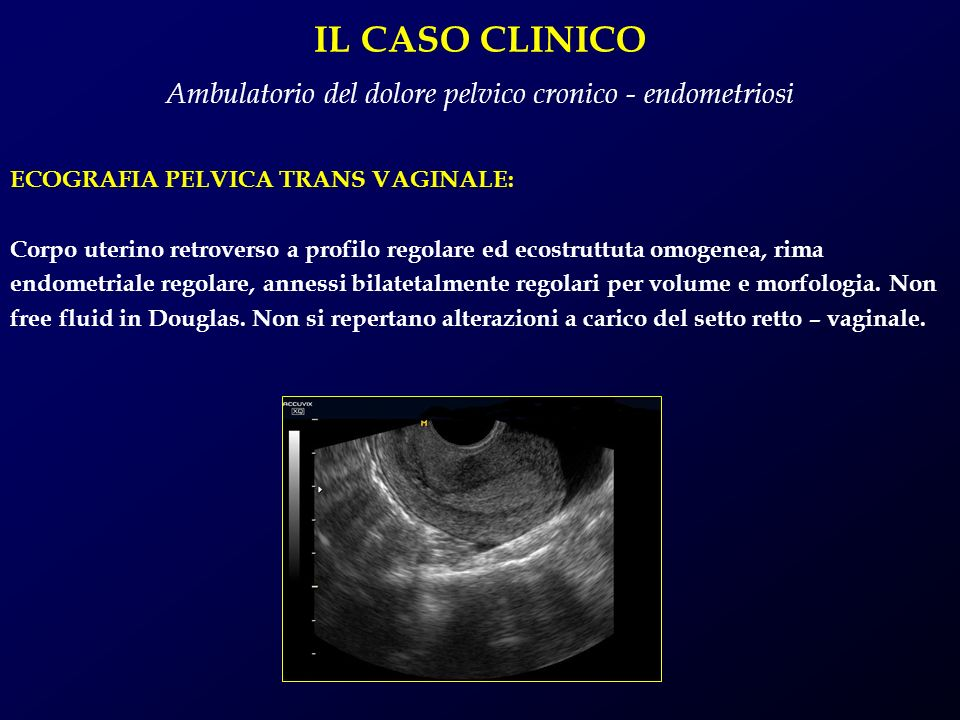Ambulatorio del dolore pelvico cronico - endometriosi