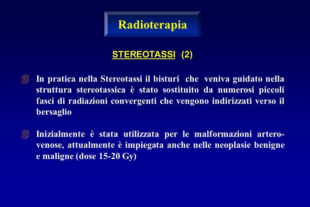 Radioterapia STEREOTASSI (2)