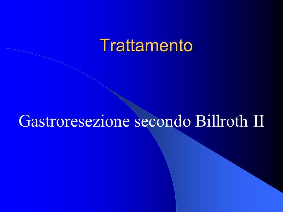 Gastroresezione secondo Billroth II