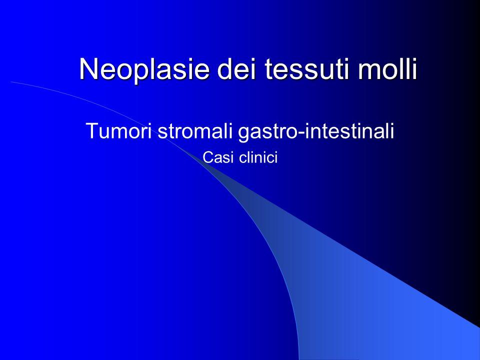 Neoplasie dei tessuti molli