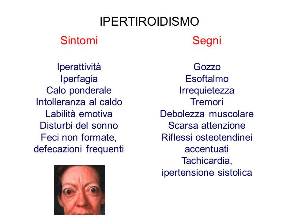 IPERTIROIDISMO Sintomi Segni Iperattività Iperfagia Calo ponderale
