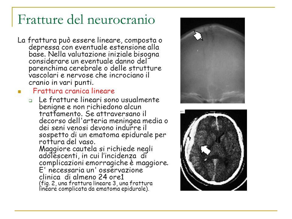Fratture del neurocranio