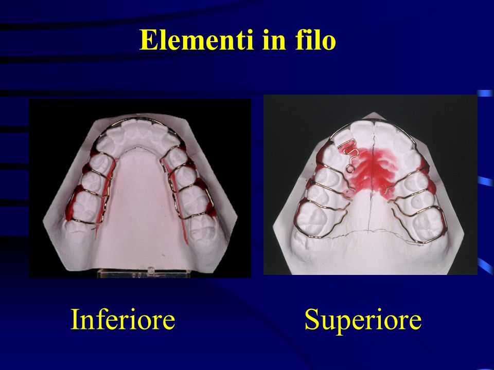 Elementi in filo Inferiore Superiore