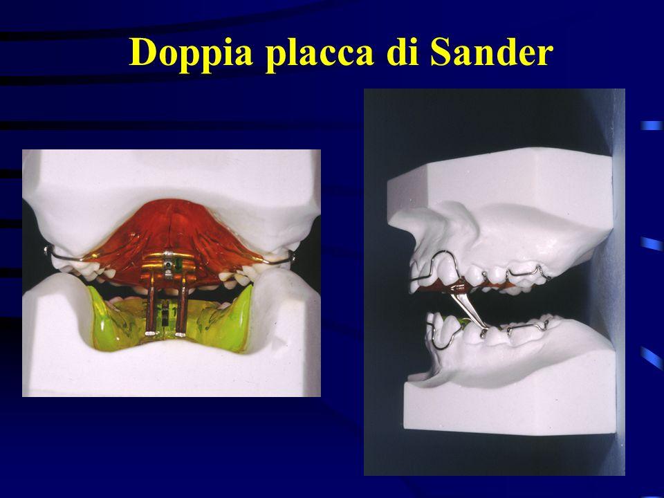 Doppia placca di Sander